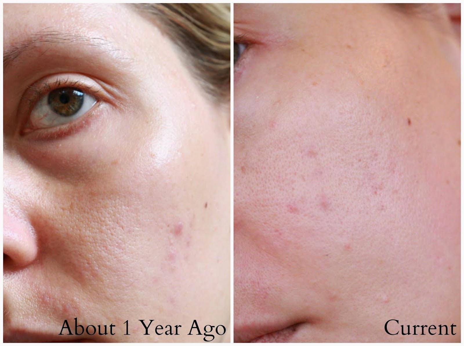 Lip & Body Treatment Balm by Paula's Choice #15
